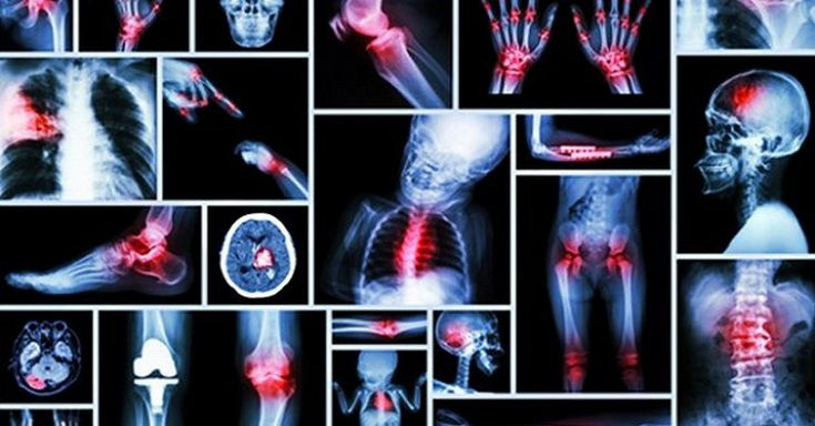 Zdrojom bolestí nemusí byť len reálne poškodenie tela alebo externé fyzické vplyvy. Často prehliadanou príčinou býva aj vnútorná psychika.