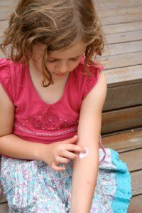 child with exzema, girls with eczema, eczema medication, home remedies for eczema