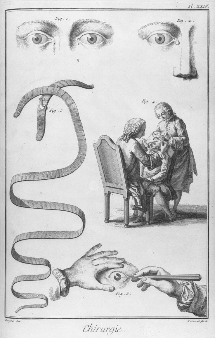 """Fig. 1 : Montre la maladie appelée """"fistule lacrymale"""" Fig. 2 : La dilatation du sac lacrymal, maladie qui précède la fistule Fig. 3 : Bandage recommandé pour la compression du sac lacrymal dilaté Fig. 4 et 5 : Attitudes pour l'ancienne méthode de faire l'opération de la cataracte. DIDEROT - D'ALEMBERT. Encyclopédie ou Dictionnaire raisonné des sciences, des arts et des métiers. Paris : Briasson, David, Le Breton, Durand, 1763 (dessinateur : Goussier, graveur : Prevost). Chirurgie, pl. XXIV."""
