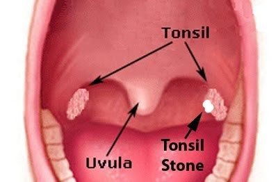 How to Get Rid of Tonsil Stones Fast and Permanently via @leanhealthywise