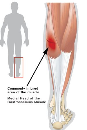 "Gastrocnemius/Calf Muscle Strain: This injury is commonly the result of quick sprints while running. With a muscle strain, there is localized tenderness or a ""bulge"" more commonly at the inner region of the back of the leg. The pain is aggravated by walking, descending stairs, or raising the heel of the affected leg off the ground."