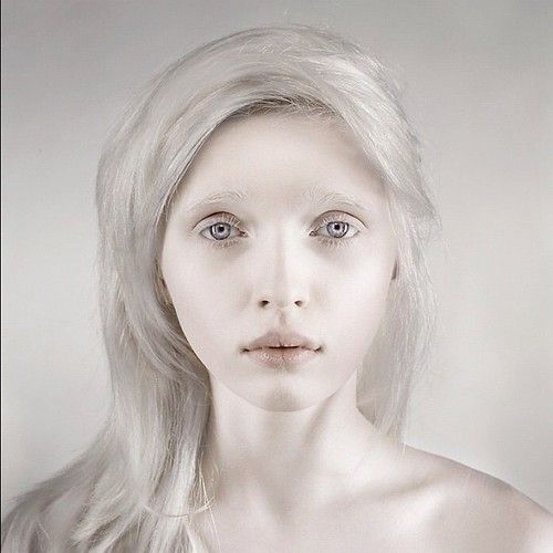 6a39fc4aaa5bdc697d52e92e9165b5fb The Most Beautiful Albino Girl in the World