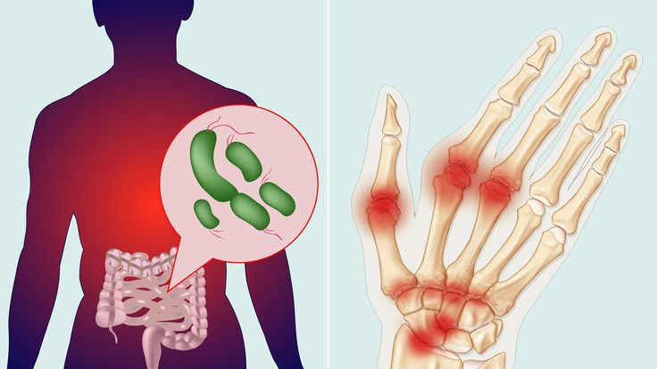 Intestinal bacteria play a role in rheumatoid arthritis. Learn about the RA gut-health link, including symptoms and immunity, plus tips on digestion, natural probiotics, foods that boost beneficial microbiome balance, and more on EverydayHealth.com.