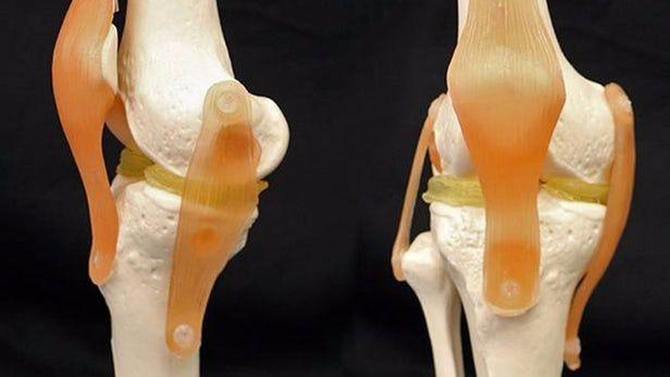 Cartilage-like hydrogel promises 3D-printable knee implants