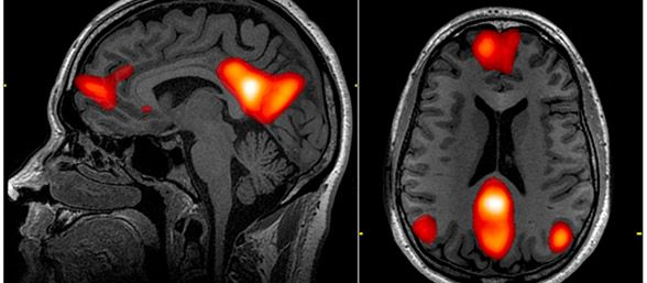 Cerebro funciona como contador de calorías interno