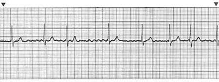 Atrial Fibrillation  A-fib is a common dysrhythmia that occurs as a result of the Atrias quivering instead of contracting. This results in frequent, irregular impulses being sent through the AV node to the ventricles. Often this will result in a rapid ventricular response (RVR) & will need emergency care. A-fib will be quite irregular in ventricular contraction. Also A-fib will lack a definitive P-wave prior to each QRS complex. Occasionally small quivering lines will occur between QRS…