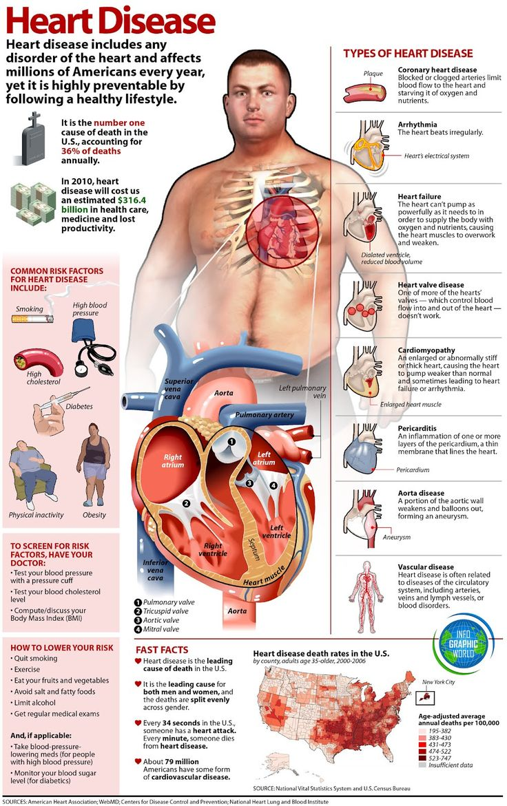 This one is a little busy and the guy looks like a psycho. However, it successfully gets a lot of information across and it is well organized with pictures representing what they are intended to represent.  Heart Disease | InfoGraphics Collection