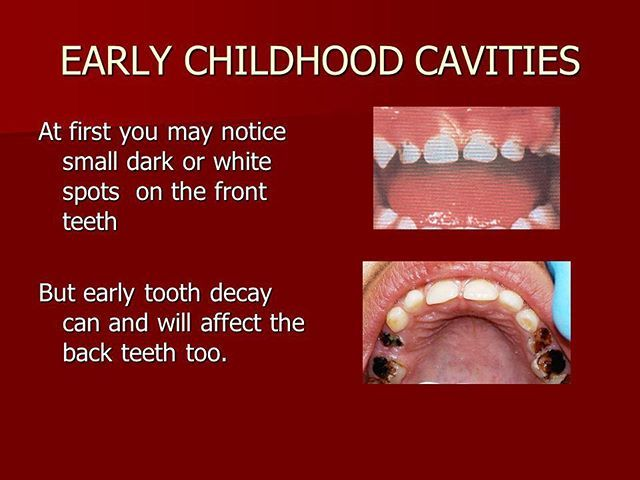 Recognize Decay In Your Childs Teeth And Visit The Dentist Asap