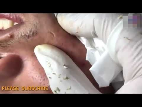BLACKHEADS – squeeze black oil on the face – how t…
