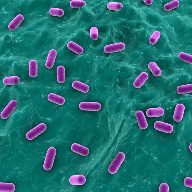 Viral Infections May Affect Cystic Fibrosis Patients: Cystic Fibrosis On Pinterest