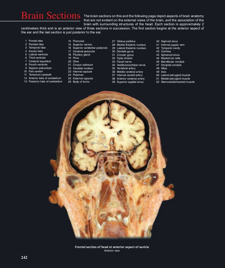 The 18 best Brain images on Pinterest