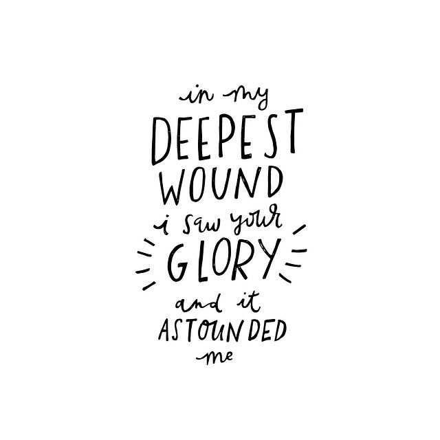 """In my deepest wound I saw your glory, and it astounded me."" 117