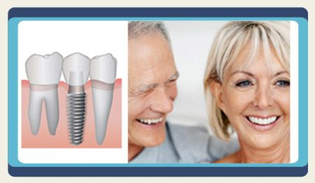Looking for the Top Dental Implant Packages in #Cancun Mexico? #Dental_Implants are small pieces of titanium created to replace #missing_teeth. They are artificial #tooth specially designed to fit and fill empty spaces in the mouth. If you are looking for affordable dental implants in Cancun, #Mexico, then you should choose us. We pride with our results and we are 100% dedicated to your needs. Call us at +1.303.500.3821 or send an e-mail at info@placidway.com