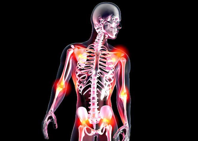 Douleurs diffuses au niveau des muscles, des articulations, des tendons,fatigue intense... Les symptômes de la fibromyalgie peuvent être extrêmement invalidants. En France, le traitement de cette maladie méconnue reste très variable d'un patient à l'autre. Une commission d'enquête parlementaire va se pencher sur cette pathologie afin d'élaborer des recommandations pour une meilleure prise en charge des patients.