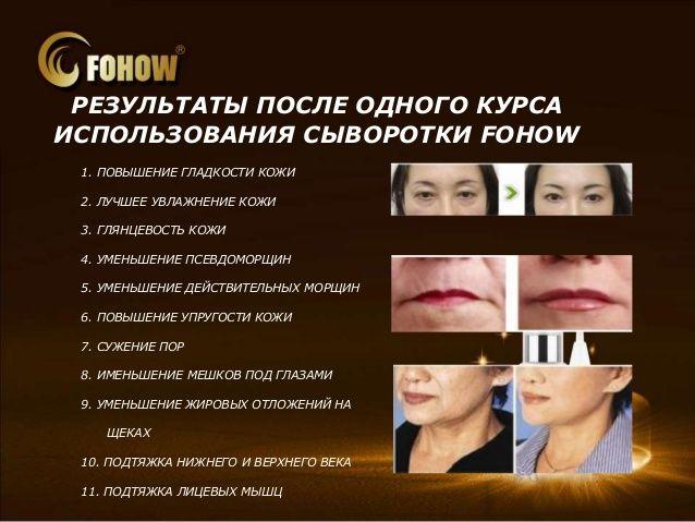 http://nazarenko.grandalmaz.com/ru/blogrezultat-po-produkcii/vosstanavlivayushchaya-syvorotka-fohow-s-mineralami-11