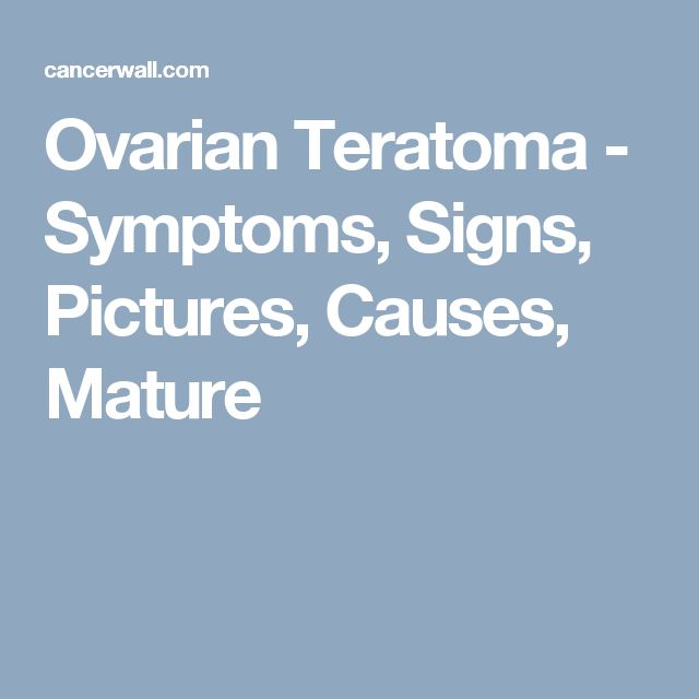 Ovarian Teratoma - Symptoms, Signs, Pictures, Causes, Mature