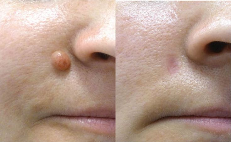 Skincell Pro is changing the way people heal and remove moles and skin tags. Join thousands of others who are already enjoying beautiful and blemish free skin today with this advanced Mole Removal Cream!