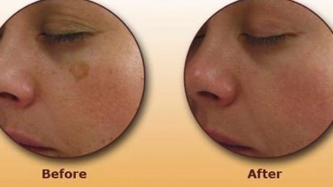 Brown spots or as they people also know them – liver spots