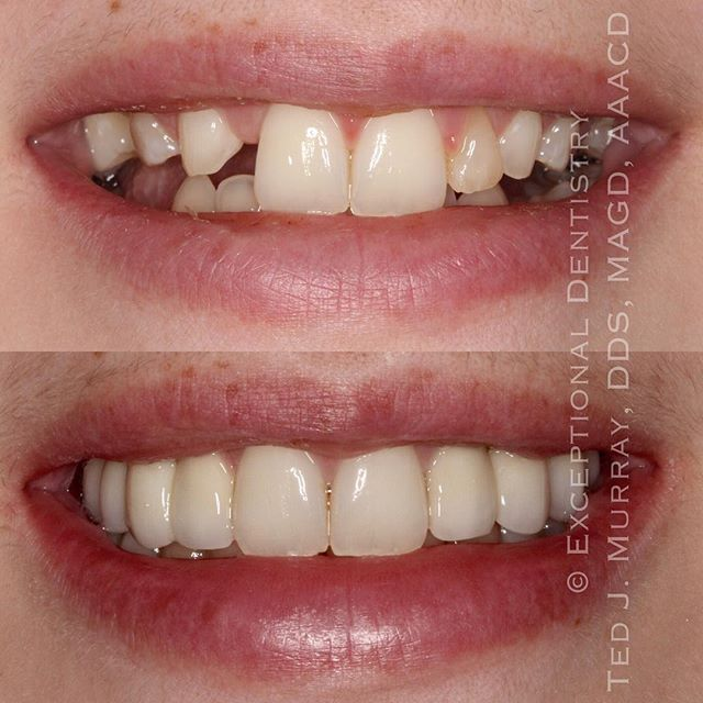 This patient was congenitally missing eleven permanent teeth. Dr. Michael Dalton at Great River Oral & Maxillofacial Surgery and Dr. Ted Murray collaborated to give this patient her beautiful new smile. #implantcrowns #dentalimplants #exceptionaldentistry #exceptionalsmiles #dubuque #dubuquedentist #changinglives