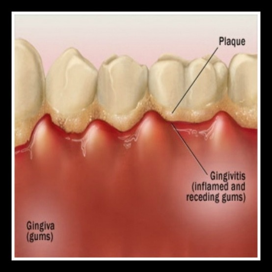 Gingivitis can occur if teeth are not cleaned regularly...regular dental visits are important to maintain healthy gums and teeth.