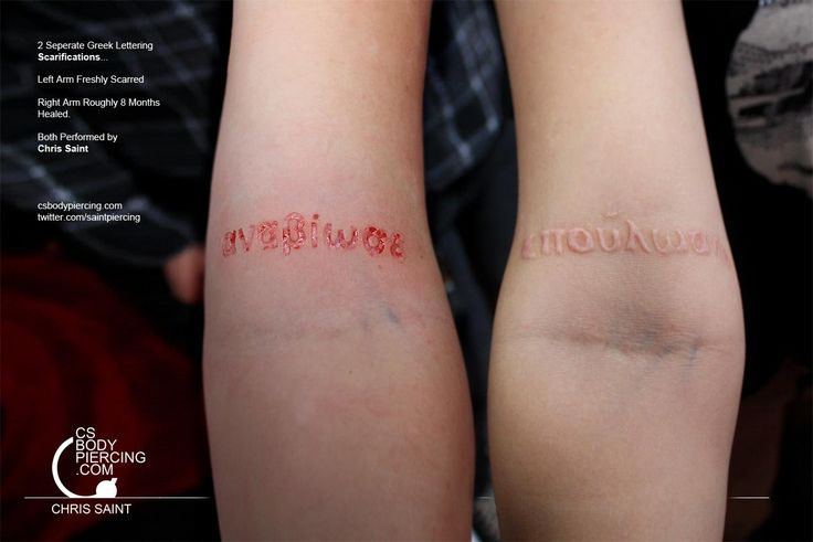 Gr∑∑k Letter Scarification (Fresh & Healed). Chris Saint. Now, what if you were to mix scarification with ink and a piercing. Sounds like overkill, but I bet if done the right shapes and color could be cool.