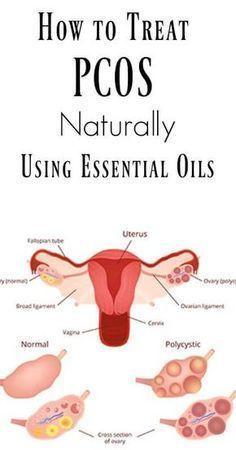 How to Treat PCOS Naturally Using Essential Oils #holisticnutrition,