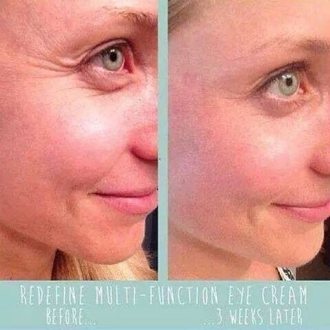 Amazing results from Rodan + Fields Redefine Multi-Function Eye Cream.