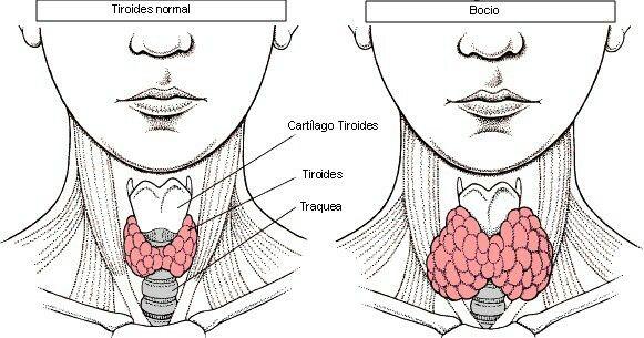 Bocio: consiste en el aumento de volumen de una parte o toda una tiroides y aumenta la producción de tiroxina