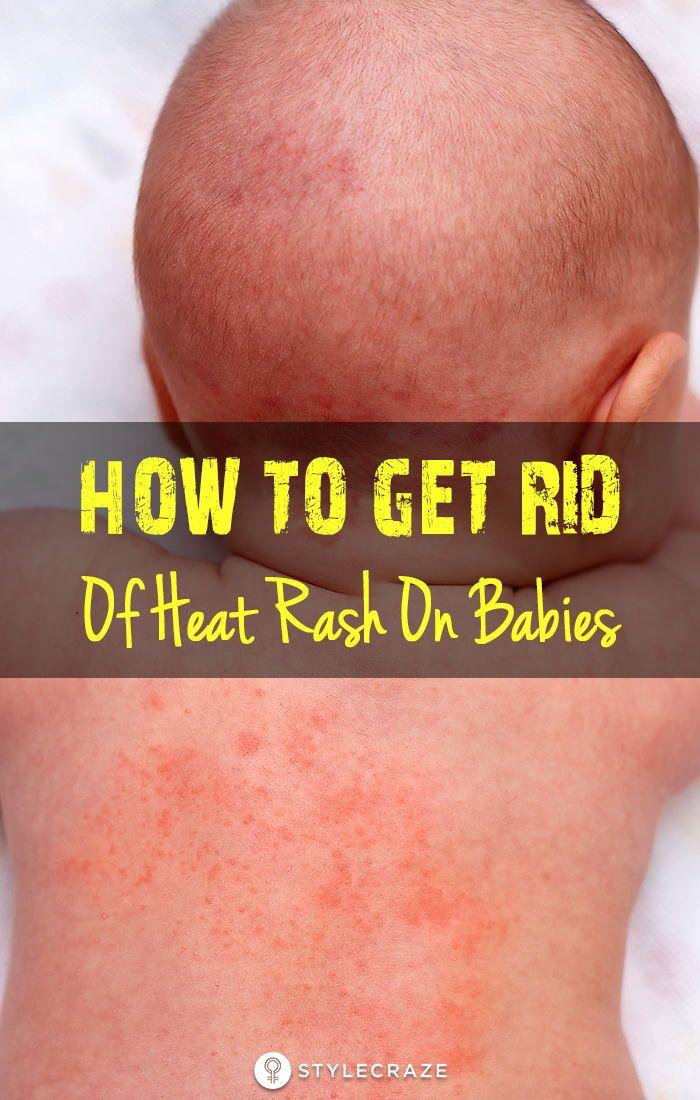 6a699fa7eebe6bfe864d03a5ab45a6b3 - How To Get Rid Of Prickly Heat In Babies