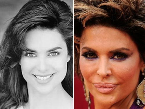 Before after plastic surgery celebrity pictures beach