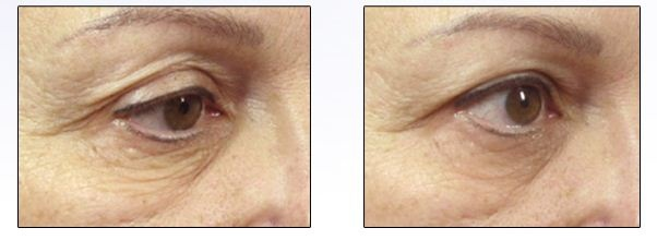 Tanda Luxe Anti-aging device: Before & After Photos after 4 weeks after starting with Tanda Luxe