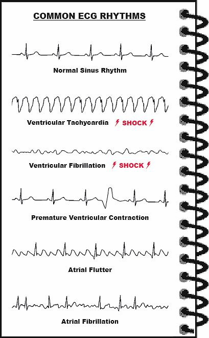 The electrical impulse moves through the heart as it contracts between 60 to 140 times a minute, depending on age of person. The contractions of ventricles represents a single heartbeat. Atria contraction is a little faster then the ventricles so the blood empties into the ventricle before their contraction.