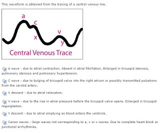Cardiac Anesthesiologist: Central Venous Pressure Trace