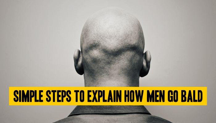 Simple Steps to Explain How Men Go Bald! Read more: https://goo.gl/ZbTF7P #Steps #Bald #Explain #Men #HairLoss #Age #Life #DrSoodsClini