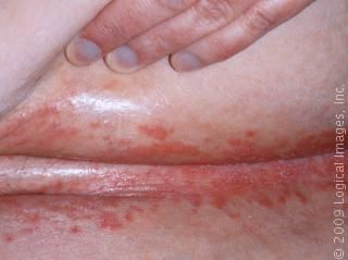 Use Yeast Blueprint To Cure Your Yeast Infection And All Forms Of Skin  Infections