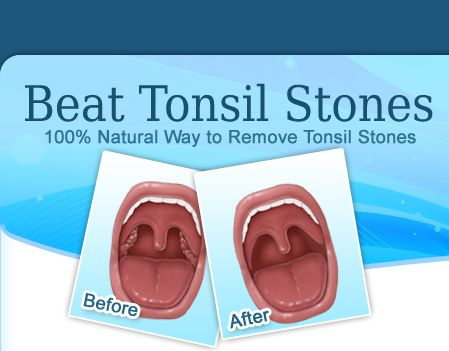 Natural Way To Remove Tonsil Stones