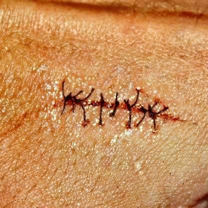 VERY easy to do VERY convincing scar!   - Halloween Parties