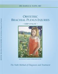 """Free Download E Book """"Obstetric Brachial Plexus Injuries"""" -Erb's Palsy- The Nath Method of Diagnosis and Treatment.  Dr. Nath is a Brachial Plexus injury expert specializing in erbs palsy and brachial plexus palsy treatment."""