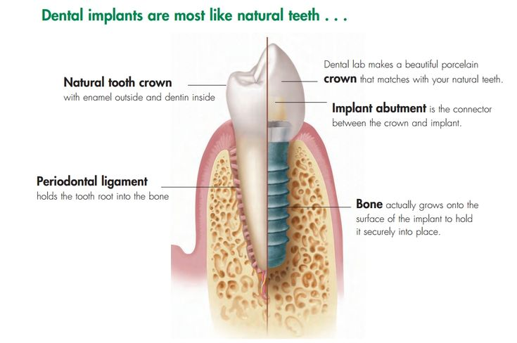 dental implant vs. a tooth. A dental implant (tooth implant) designed to replace a single tooth is composed of three parts: the titanium implant that fuses with the jawbone; the abutment, which fits over the portion of the implant that protrudes from the gum line; and the crown, which is created by a prosthodontist or restorative dentist and fitted onto the abutment for a natural appearance.
