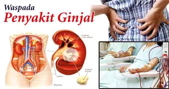 GINJAL - Mengobati Penyakit Ginjal Dengan Herbal Alami : Cara Membersihkan Ginjal, Nyeri Pada Ginjal, Sakit Batu Ginjal, Penyakit Ginjal .....