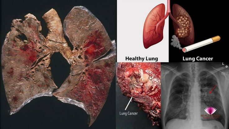 Lung Cancer Causes, Signs, Symptoms, and Treatment #Lungcancer #LungcancerSymptoms  https://youtu.be/E6qI5qX0wu8