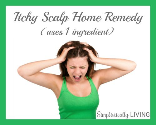 itchy-scalp-home-remedy