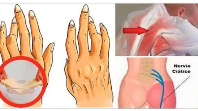olio di ricino artrite