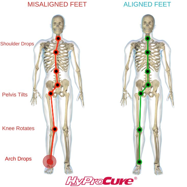 What exactly are misaligned feet? Misaligned feet are the result of the ankle bone sliding off of the heel bone causing the small, naturally-occurring space in between (called the sinus tarsi) to collapse. When you stand on feet that are misaligned, it causes a chain reaction of misalignment through the body. Your body is then forced to compensate by putting excessive strain on your ankles, knees, hips, and back.