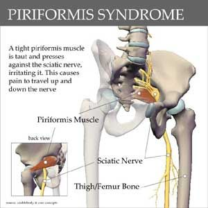 Anatomy In Motion: Sciatica vs. Piriformis Syndrome    St. Augustine, FL Massage Therapy  www.skillfultouchbodywork.com