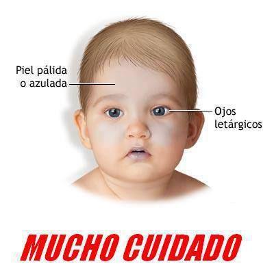 SÍNDROME DEL BEBÉ SACUDIDO  Tres segundos es lo que tarda el Síndrome del Bebé sacudido en causarle daños irreversibles a su niño. Por ello, nunca permita que sacudan a su pequeño ni lo lancen por los aires. Puede causarle la muerte.