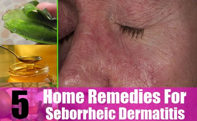 5 Effective Home Remedies For Seborrheic Dermatitis