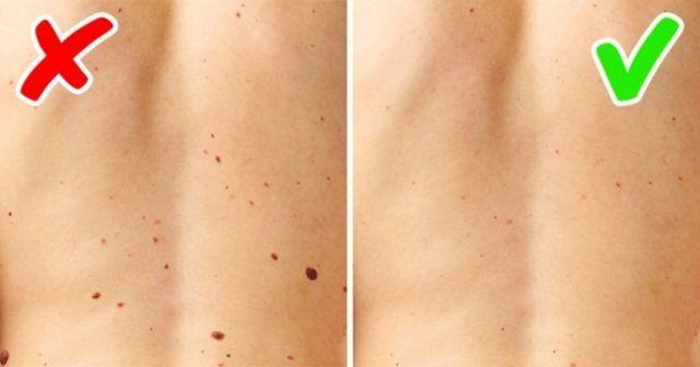 Odstráňte bradavice, vyrážky a znamienka na pokožke s týmto prírodným receptom