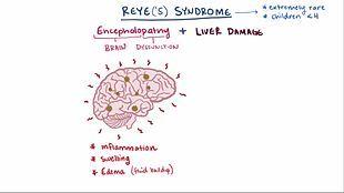 File:Reye syndrome video.webm