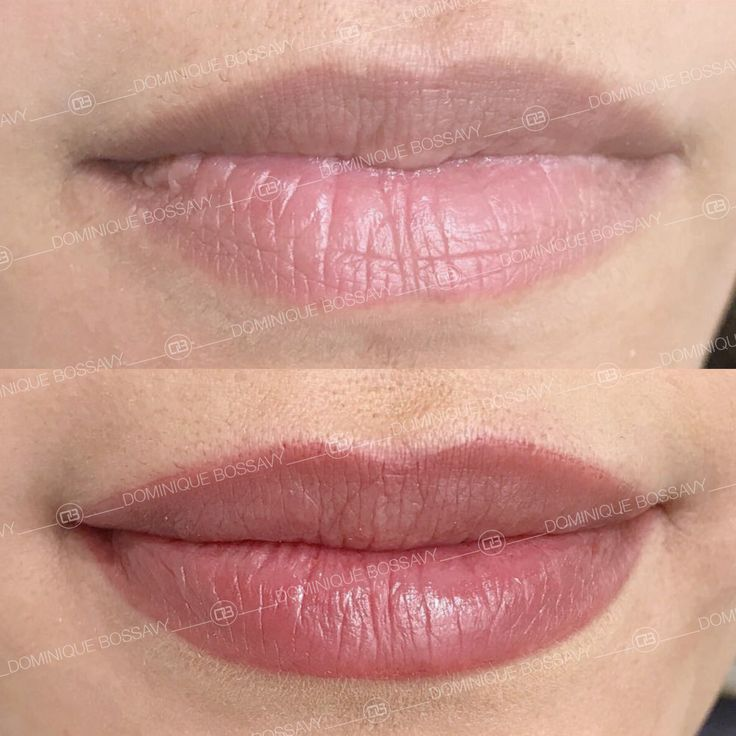 Before after lips microblading tattoo with nanocolor